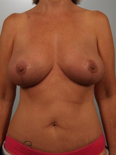 Breast Lift Gallery - Patient 1310578 - Image 2