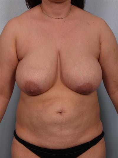 Breast Reduction Gallery - Patient 1310580 - Image 1