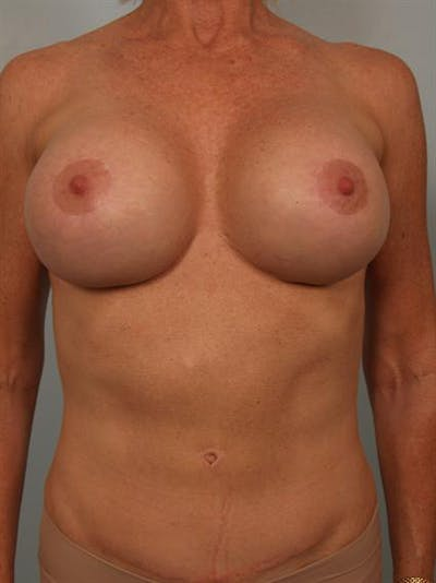 Complex Breast Revision Gallery - Patient 1310581 - Image 2
