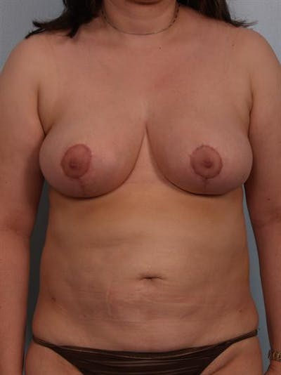 Breast Reduction Gallery - Patient 1310580 - Image 2