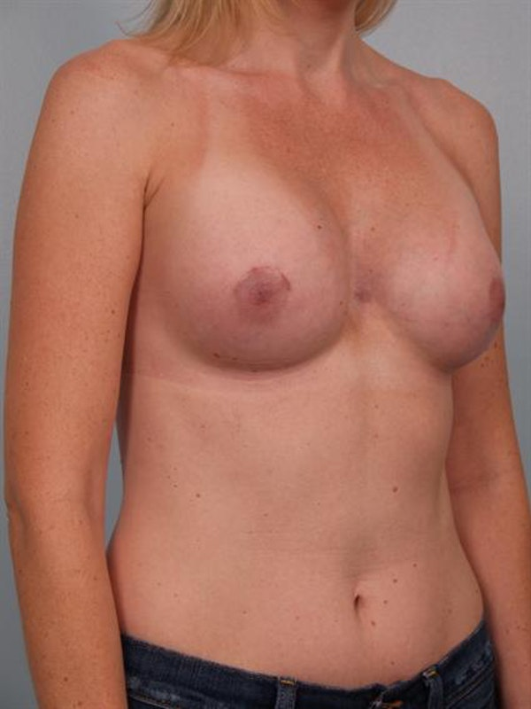 Breast Augmentation Gallery - Patient 1310582 - Image 2
