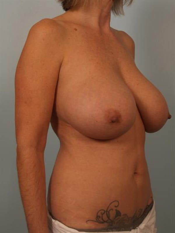 Breast Lift Gallery - Patient 1310578 - Image 3