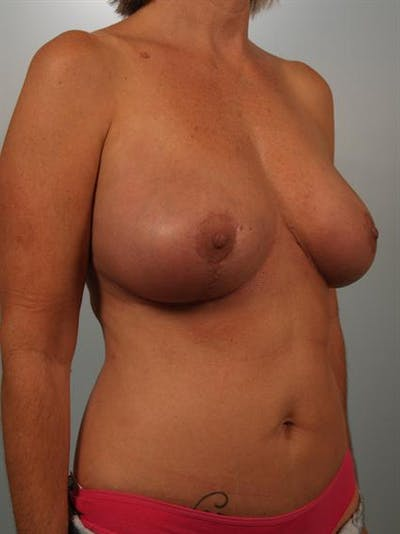 Breast Lift Gallery - Patient 1310578 - Image 4