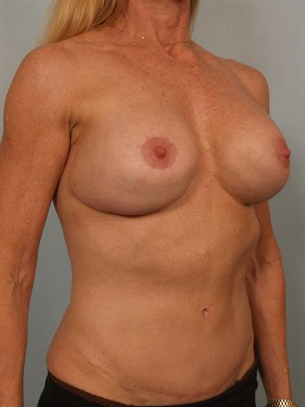 Complex Breast Revision Gallery - Patient 1310581 - Image 3