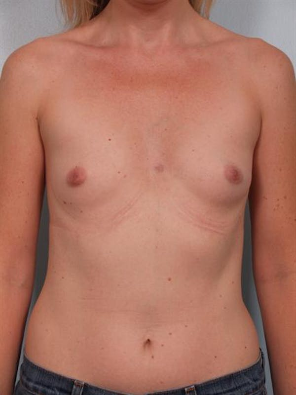 Breast Augmentation Gallery - Patient 1310582 - Image 3