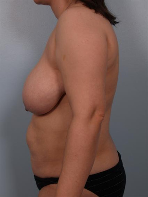 Breast Reduction Gallery - Patient 1310580 - Image 3