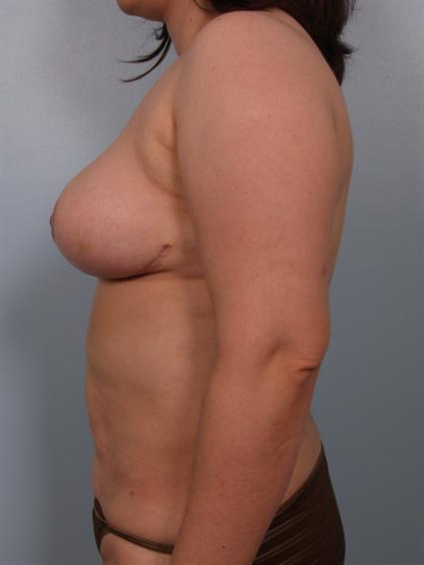 Breast Reduction Gallery - Patient 1310580 - Image 4