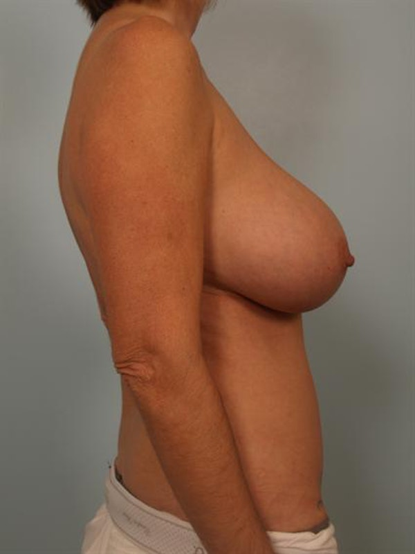 Breast Lift Gallery - Patient 1310578 - Image 5
