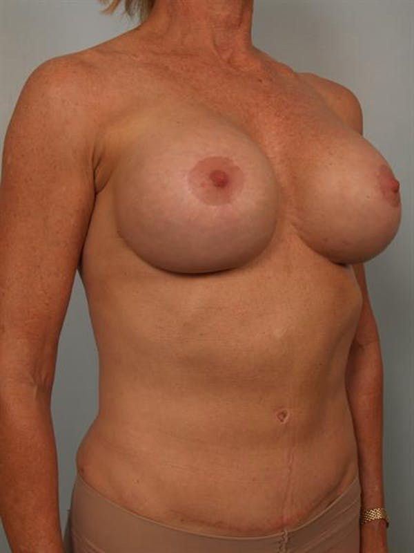 Complex Breast Revision Gallery - Patient 1310581 - Image 4