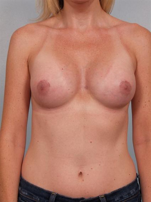 Breast Augmentation Gallery - Patient 1310582 - Image 4
