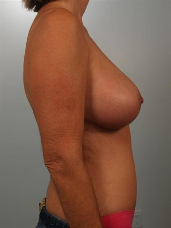 Breast Lift Gallery - Patient 1310578 - Image 6