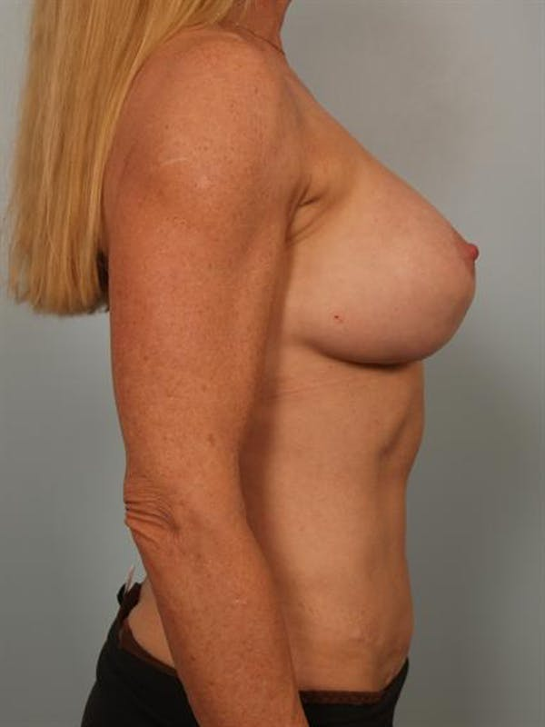 Complex Breast Revision Gallery - Patient 1310581 - Image 5