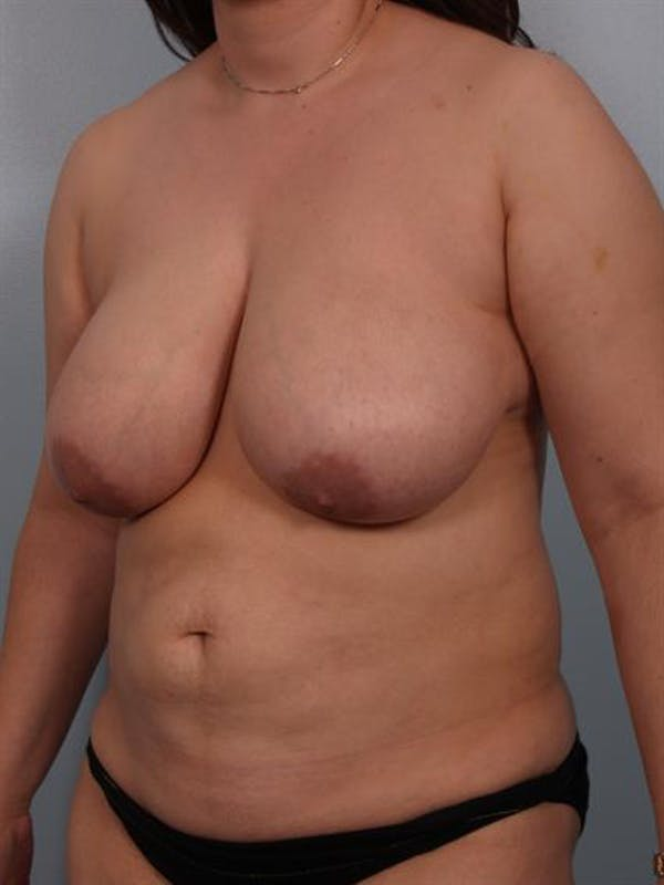 Breast Reduction Gallery - Patient 1310580 - Image 5