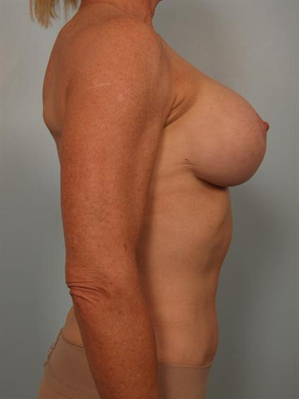 Complex Breast Revision Gallery - Patient 1310581 - Image 6