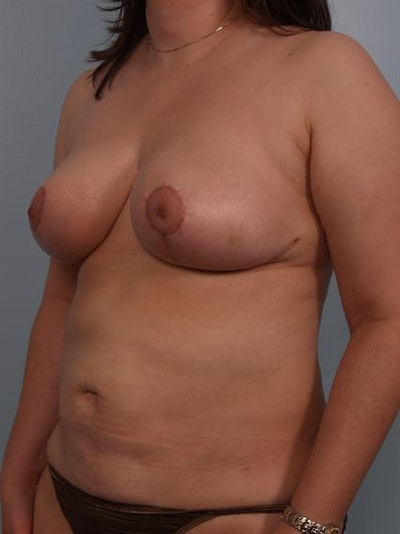 Breast Reduction Gallery - Patient 1310580 - Image 6