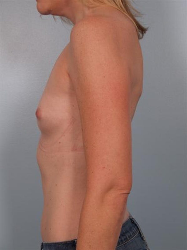 Breast Augmentation Gallery - Patient 1310582 - Image 5