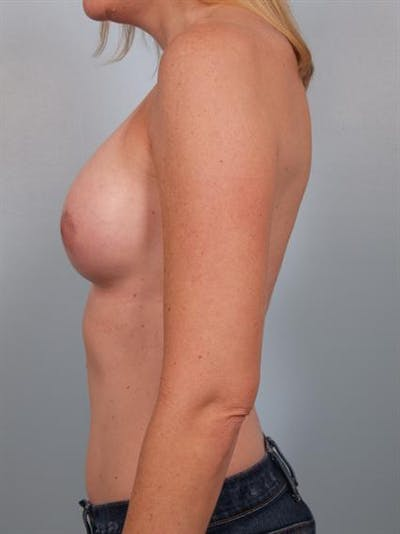 Breast Augmentation Gallery - Patient 1310582 - Image 6