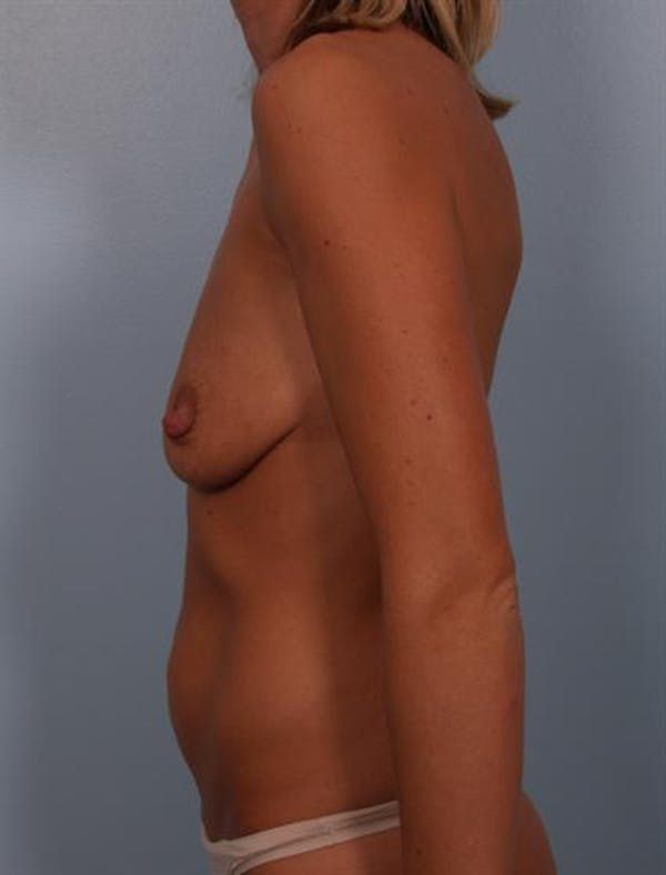 Breast Lift Gallery - Patient 1310584 - Image 3