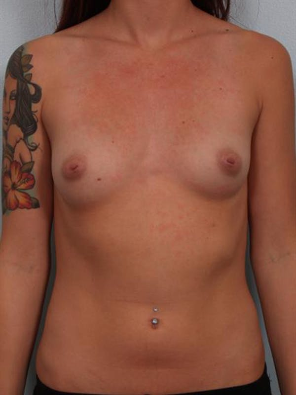 Fat Grafting Gallery - Patient 1310583 - Image 1