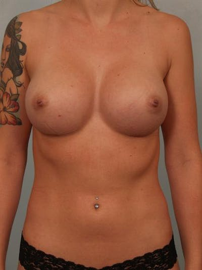Fat Grafting Gallery - Patient 1310583 - Image 2