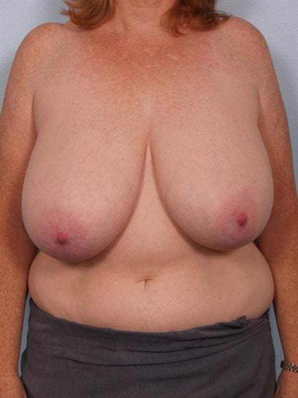 Breast Reduction Gallery - Patient 1310585 - Image 1