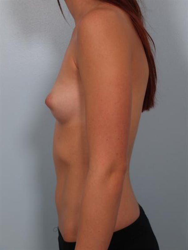 Fat Grafting Gallery - Patient 1310583 - Image 3