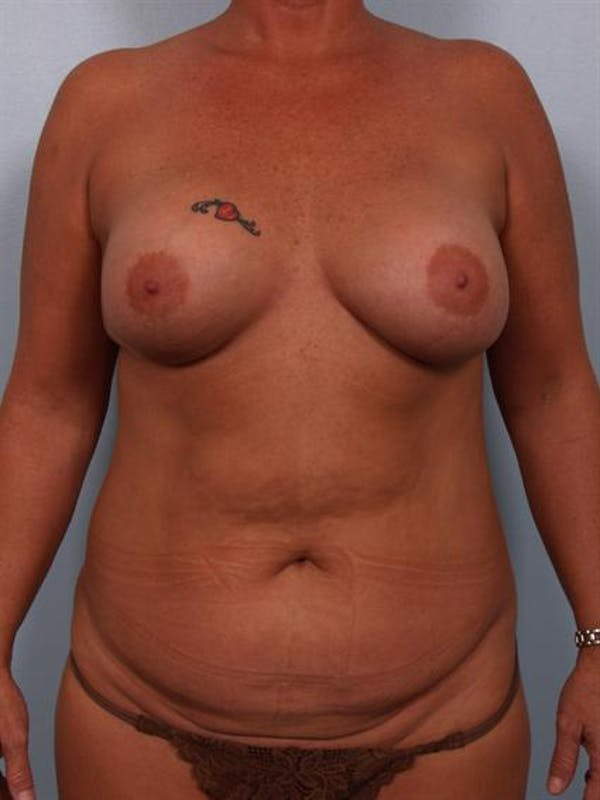 Complex Breast Revision Gallery - Patient 1310586 - Image 1