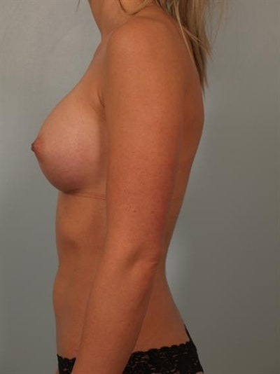 Fat Grafting Gallery - Patient 1310583 - Image 4