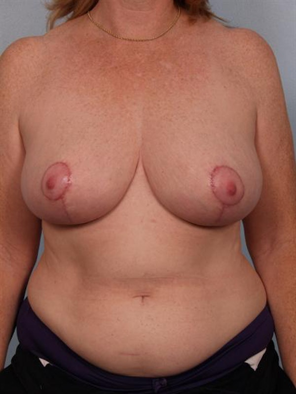 Breast Reduction Gallery - Patient 1310585 - Image 2