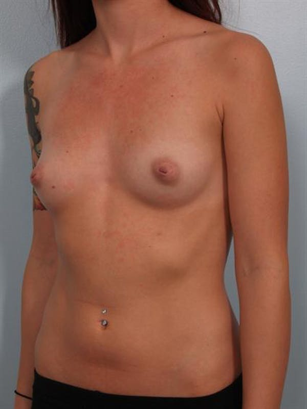Fat Grafting Gallery - Patient 1310583 - Image 5