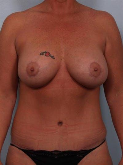 Complex Breast Revision Gallery - Patient 1310586 - Image 2