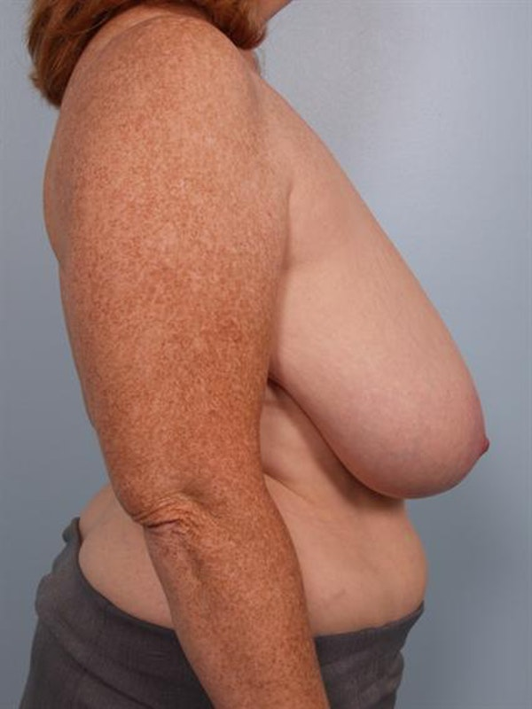Breast Reduction Gallery - Patient 1310585 - Image 3