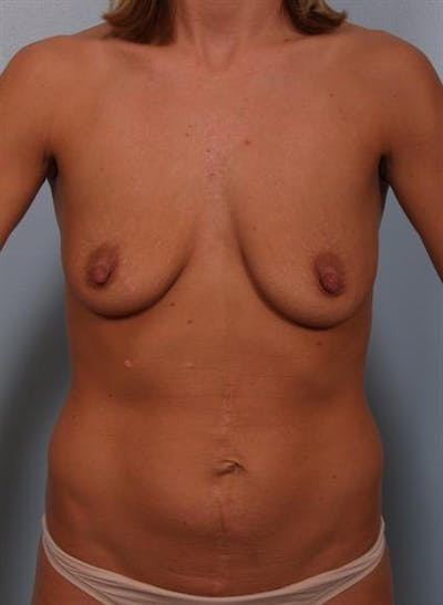Breast Lift Gallery - Patient 1310584 - Image 1