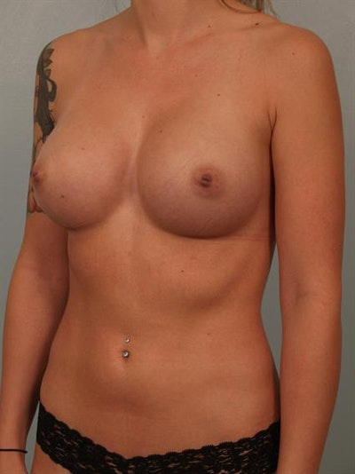Fat Grafting Gallery - Patient 1310583 - Image 6