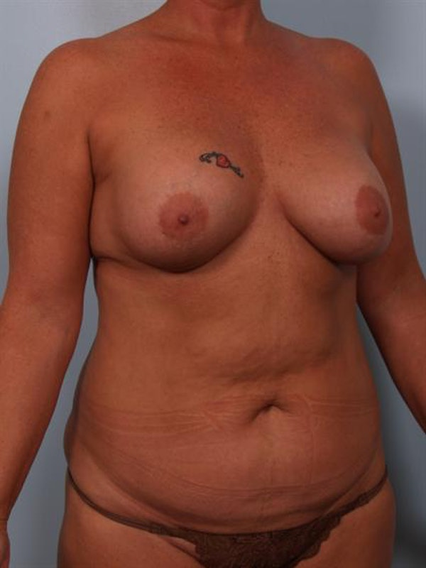 Complex Breast Revision Gallery - Patient 1310586 - Image 3