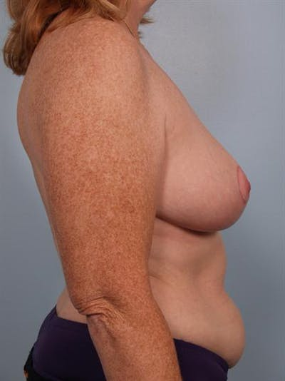 Breast Reduction Gallery - Patient 1310585 - Image 4
