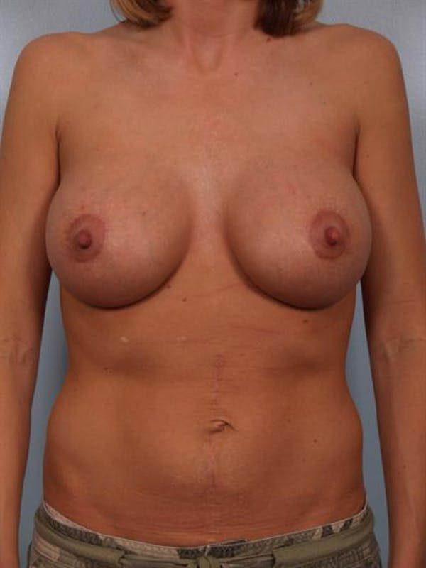 Breast Lift Gallery - Patient 1310584 - Image 2