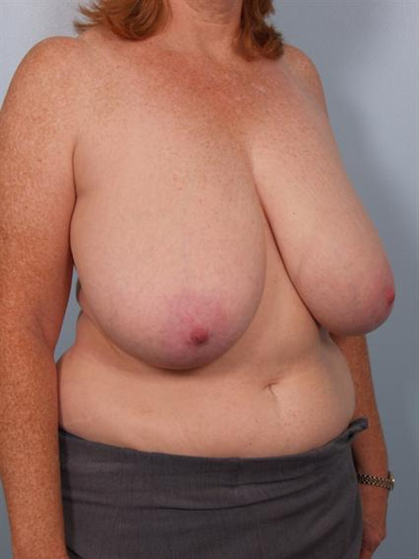 Breast Reduction Gallery - Patient 1310585 - Image 5