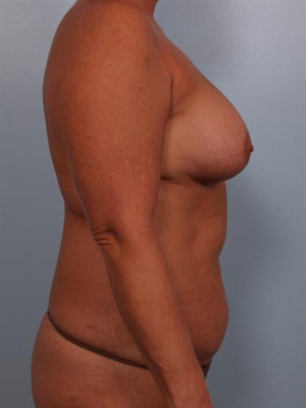 Complex Breast Revision Gallery - Patient 1310586 - Image 5