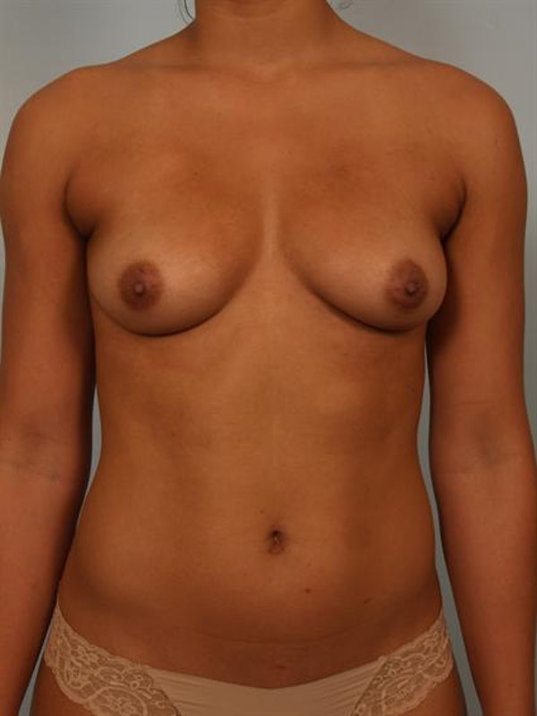 Breast Augmentation Gallery - Patient 1310588 - Image 1