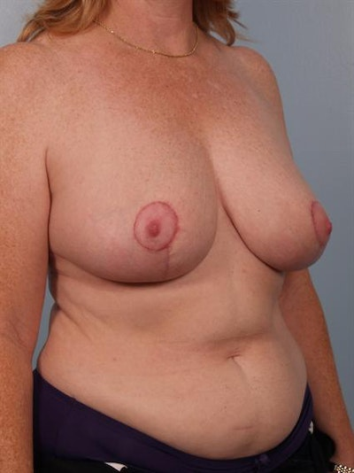 Breast Reduction Gallery - Patient 1310585 - Image 6