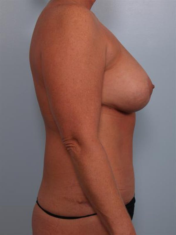 Complex Breast Revision Gallery - Patient 1310586 - Image 6