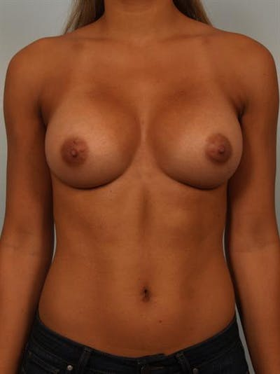 Breast Augmentation Gallery - Patient 1310588 - Image 2
