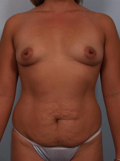 Breast Lift Gallery - Patient 1310591 - Image 1