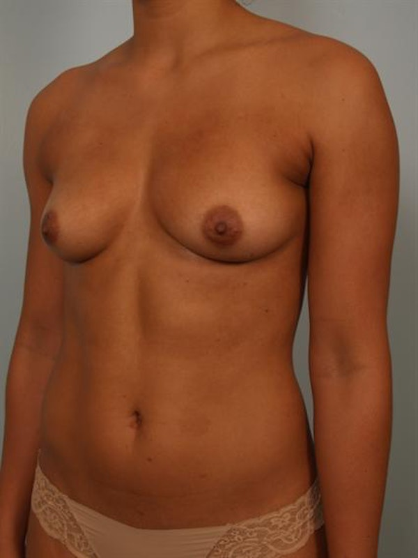 Breast Augmentation Gallery - Patient 1310588 - Image 3