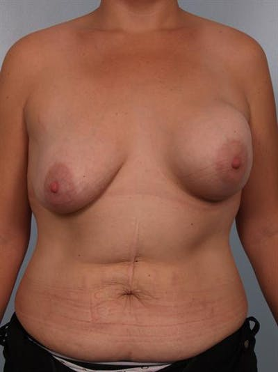 Complex Breast Revision Gallery - Patient 1310590 - Image 1