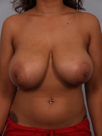 Breast Reduction Gallery - Patient 1310589 - Image 1