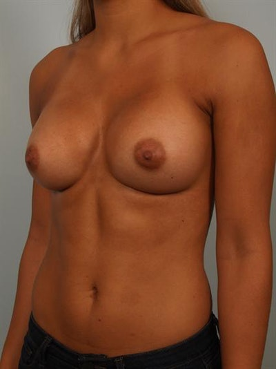 Breast Augmentation Gallery - Patient 1310588 - Image 4