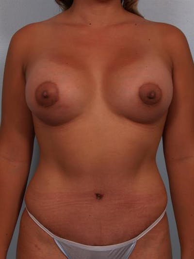 Breast Lift Gallery - Patient 1310591 - Image 2