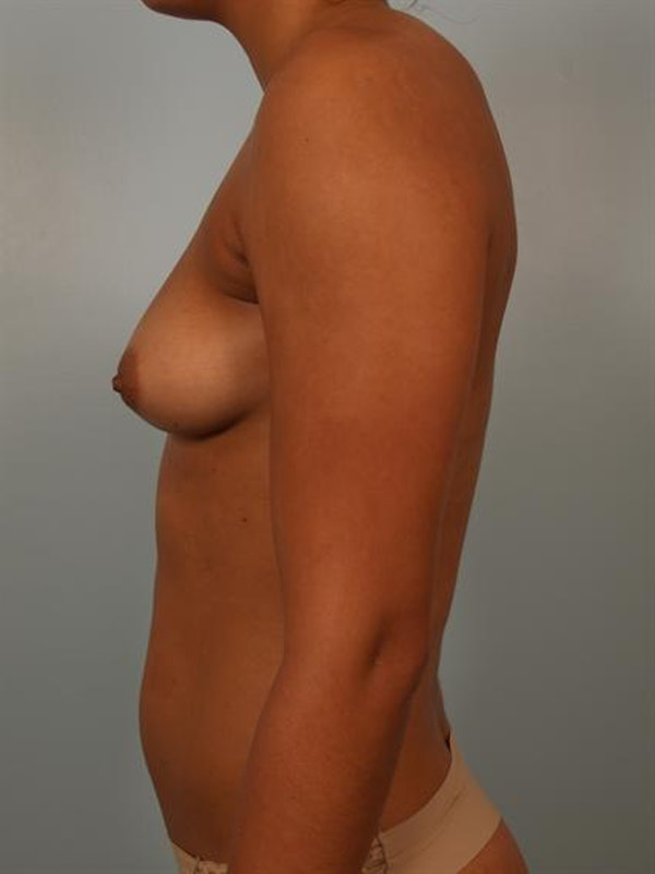 Breast Augmentation Gallery - Patient 1310588 - Image 5